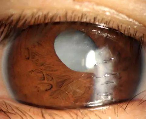 白内障眼球图片_正文  外伤性白内障 有明确外伤史,当锐性或者钝性的力量作用到眼球