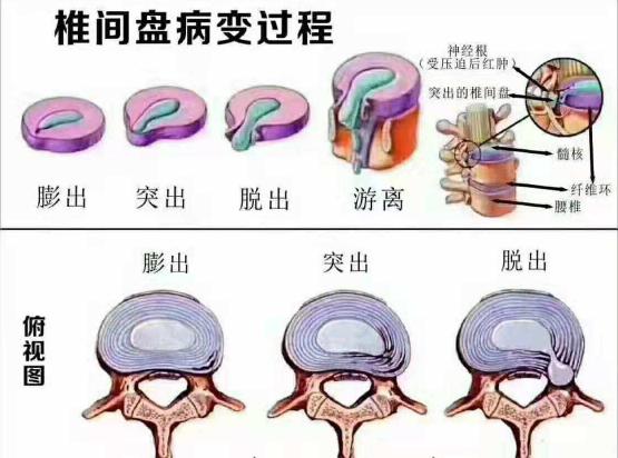 腰椎间盘膨出疗法_前者并不一定产生症状,多是处于腰椎间盘膨出这一阶段,此时神经尚未
