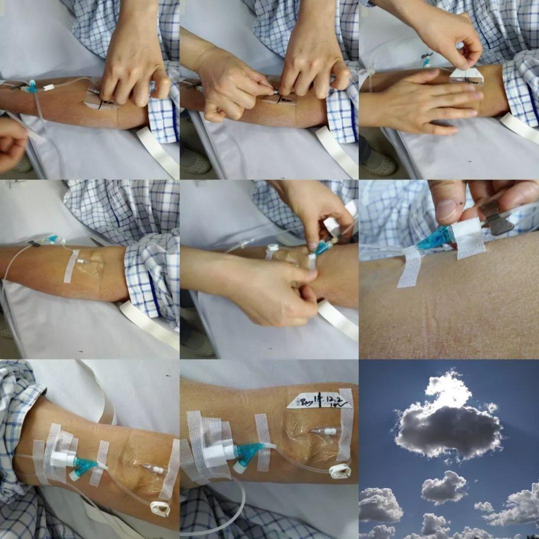 护理科普 超全的 PDA 系统下的静脉留置针技术
