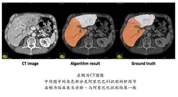 阿里AI肝病诊断两夺世界第一:至今乙肝五项对照表图片无人超越