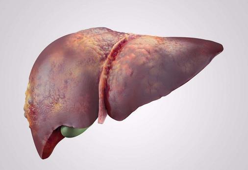 為何肝癌「鍾情」於國人?這3大飲食習慣是誘因!
