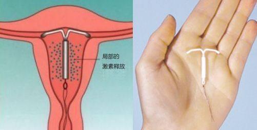 结育环的原理_扩展资料:   作用:   曼月乐是现有唯一的局部药物避孕法,它是一种节育环,里面含有雌孕激素,它的原理就是定期向宫腔内释放一定量的雌孕激