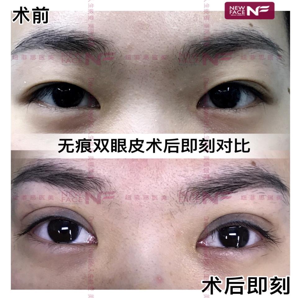 上海纽菲思徐在敦院长 埋线双眼皮多久可以化妆