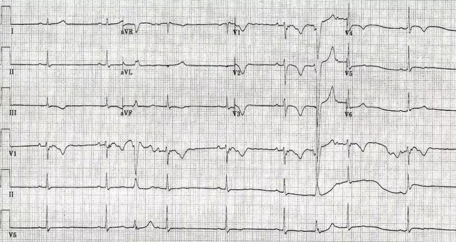 而且,arvc在右室不但可累及正常的心肌,传导系统也在累及范围之内,完全和不完全性右束支传导阻滞在arvc患者中也很常见,arvc患者的右束支传导阻滞有一定的特点:(1)r波和r