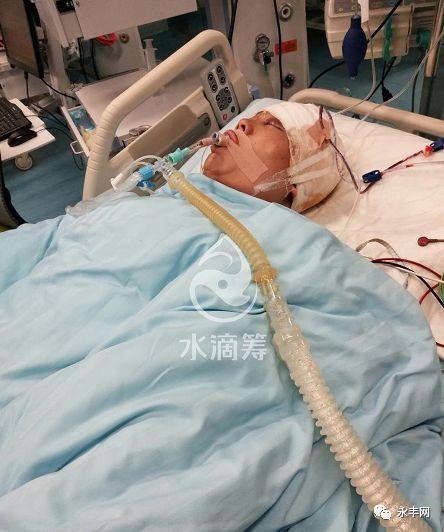 石马一男子重度颅脑外伤,现在浙江急需救援
