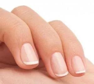 健康 指甲上的月牙 竖纹 白点代表什么 这8种指甲问题,一出现就是大事