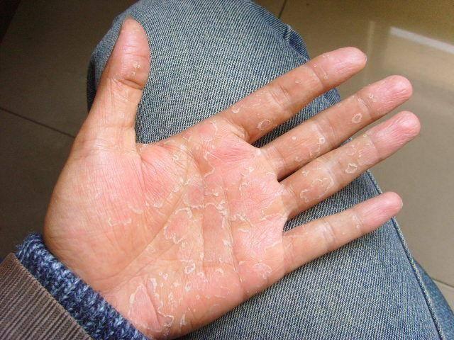 手脱皮是什么原因?是缺什么维生素吗?