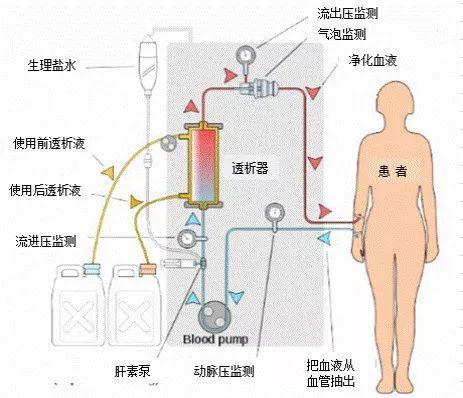 【科室之窗】肾病科成功开展腹膜透析治疗