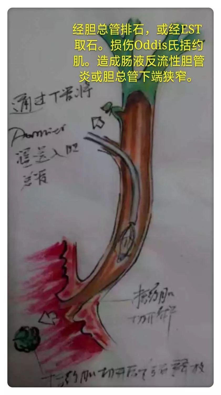 胆囊穴_胆囊穴定位_胆囊穴位位置图_胆囊穴养生功效 | 人体穴位图