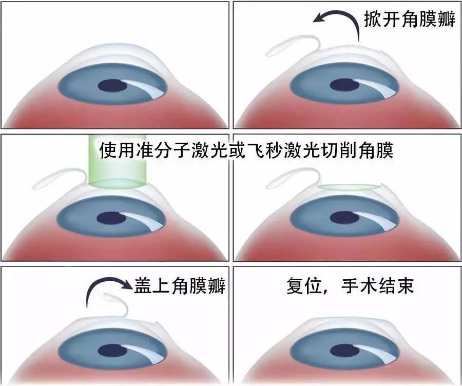 近视眼准分子激光手_近视激光手术,真不是谁都能做_角膜