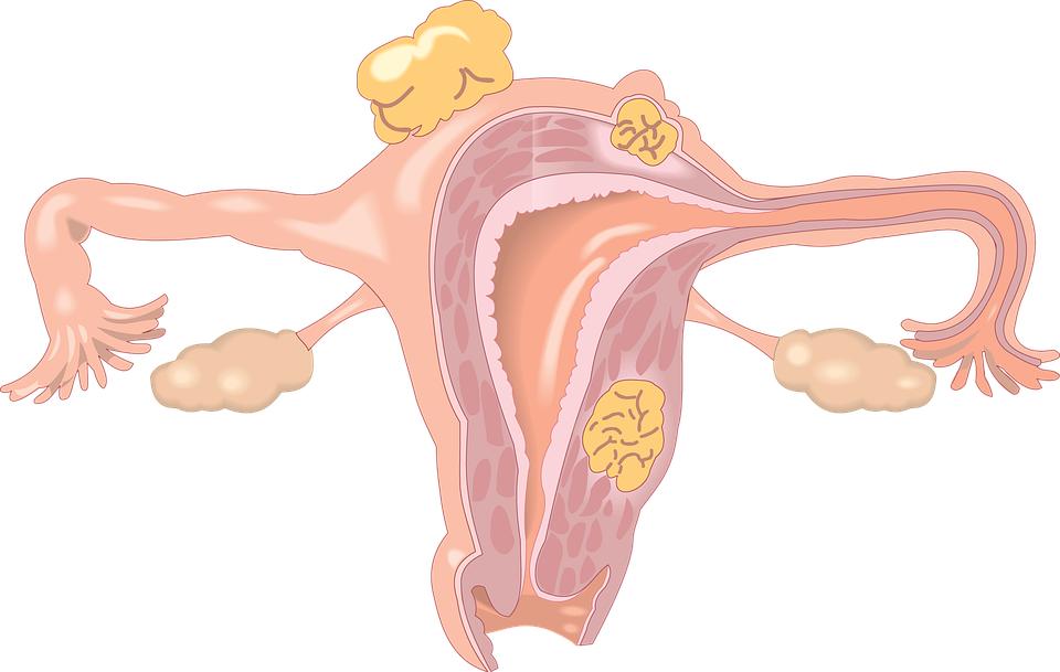 卵巢早衰与年龄无关,无法逆转!拒绝这些危险因素!
