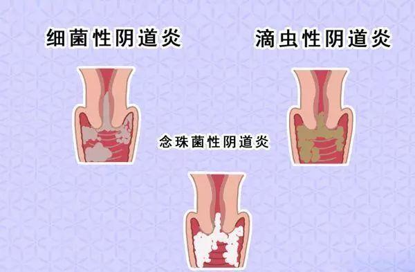 【健康知识】春节期间常见妇科病,你知道几个?
