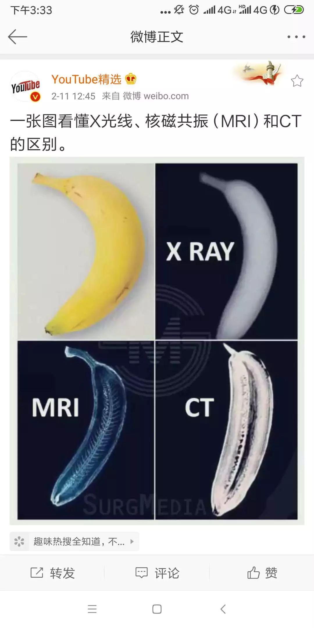 这不是丁丁,是核磁共振(MRI)里的香蕉!