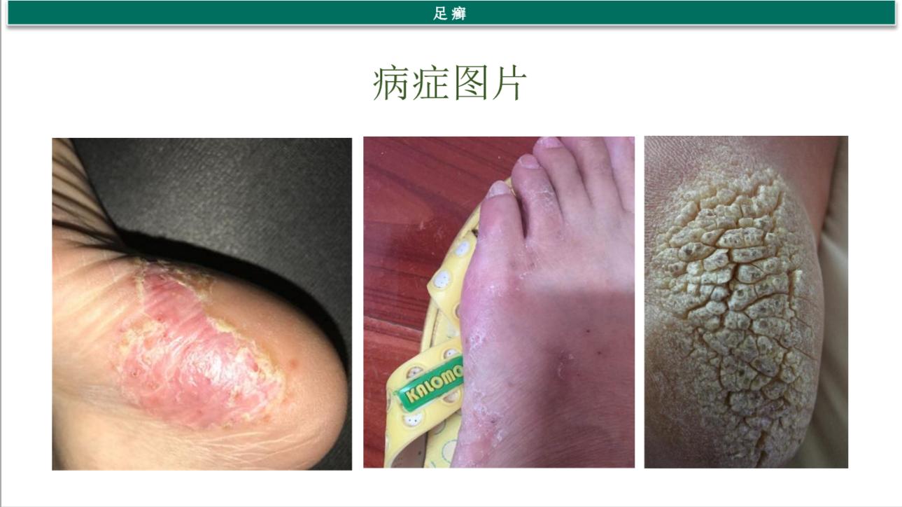 角化型脚气症状图片