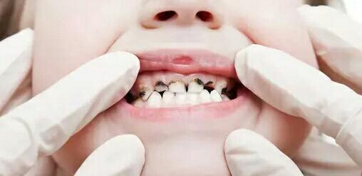 女性人生的不同阶段,口腔护理有什么变化?