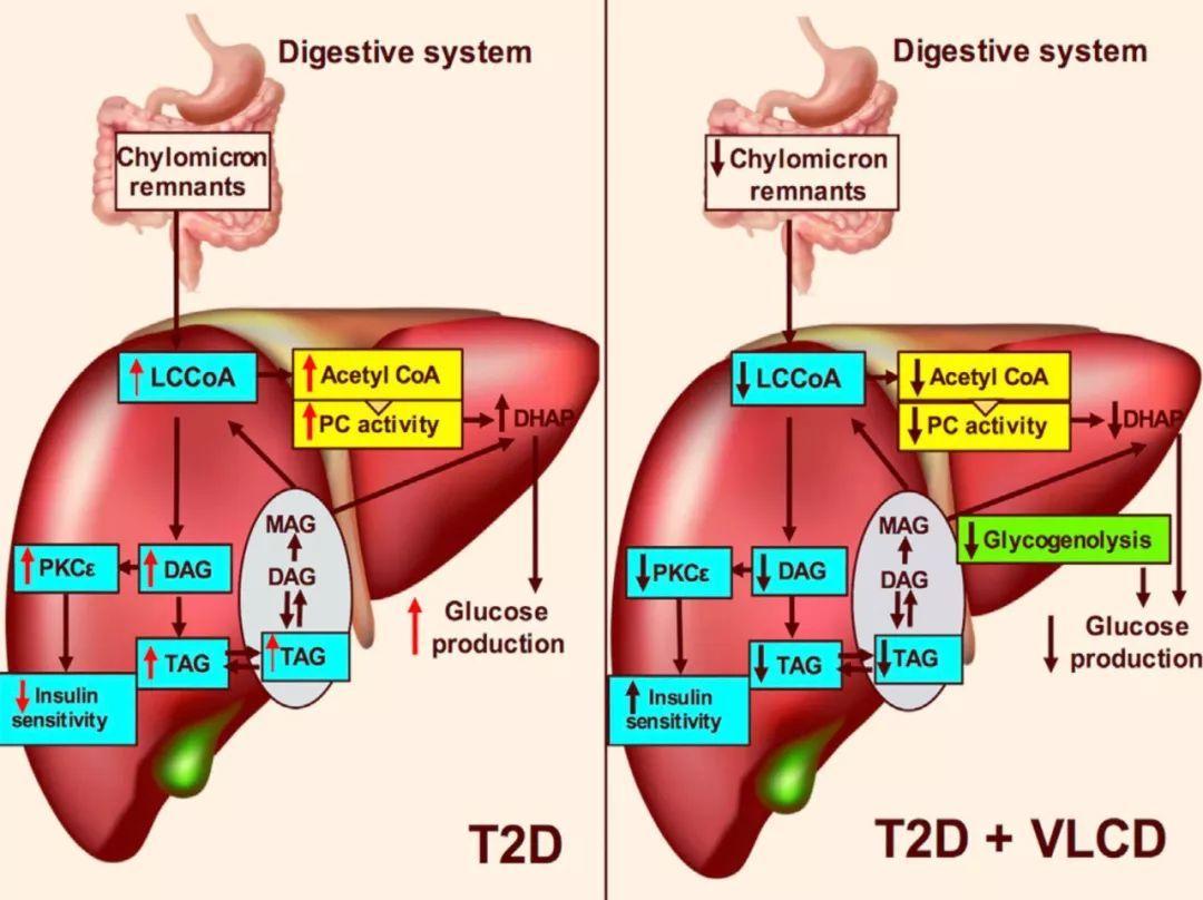 肠道菌群分泌的丁酸会改善胰岛素响应,而丙酸会增加2型糖尿病风险