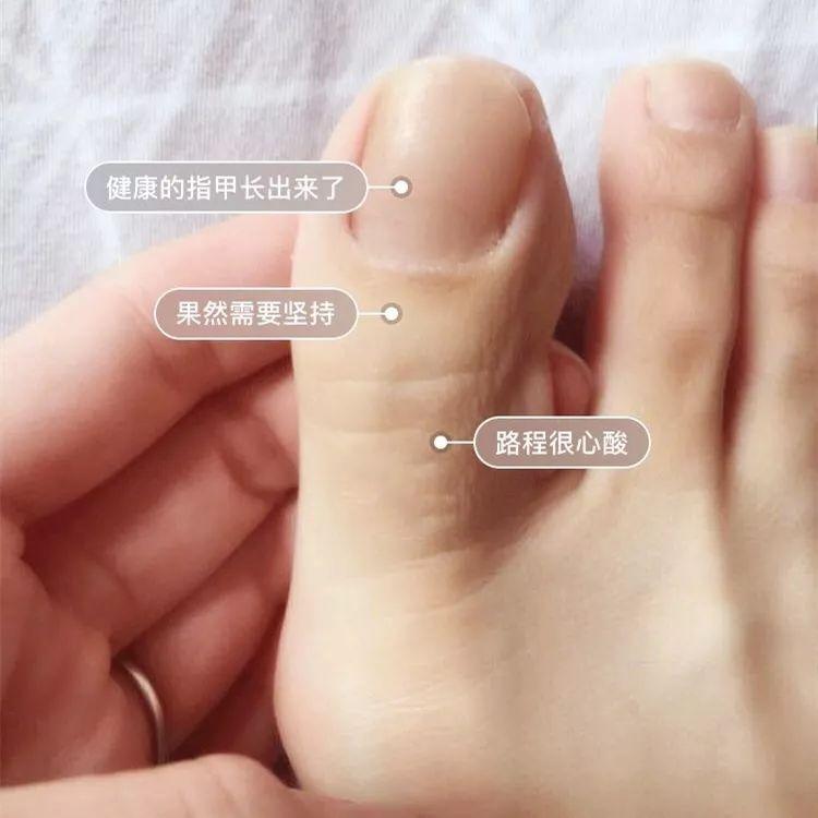 关于脚气灰指甲!预防方法!