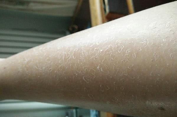 冬天腿上皮肤干燥掉皮屑图片