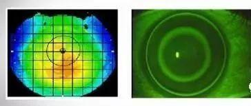塑形镜的原理_△角膜塑形镜视力矫正原理