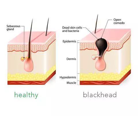黑头铲的原理_touchbeauty超声波导入美容仪洁面去黑头铲皮机吸黑毛孔清洁神器