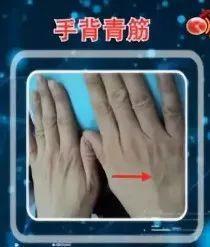 血管好不好,自己看看手就知道!这5个地方长青筋太危险!