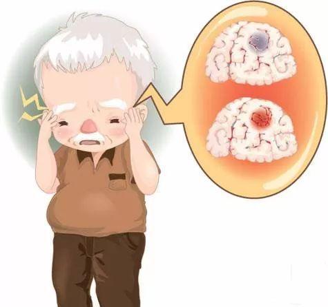 脑梗塞不是老梗!年轻人也可能患这种病