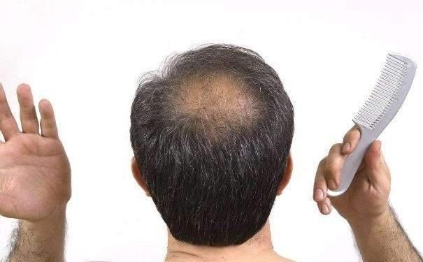 脱发什么原理_头顶脱发剪什么发型图