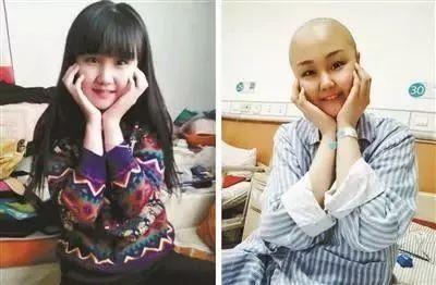 21岁女大学生不幸患癌!从大一到大三,她瞒着老师、同学治疗!坚