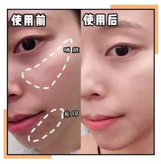 学习美容需掌握的美容按摩手法