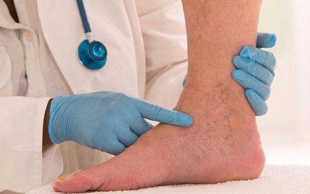 硬化 下肢 動脈 閉塞 症 性