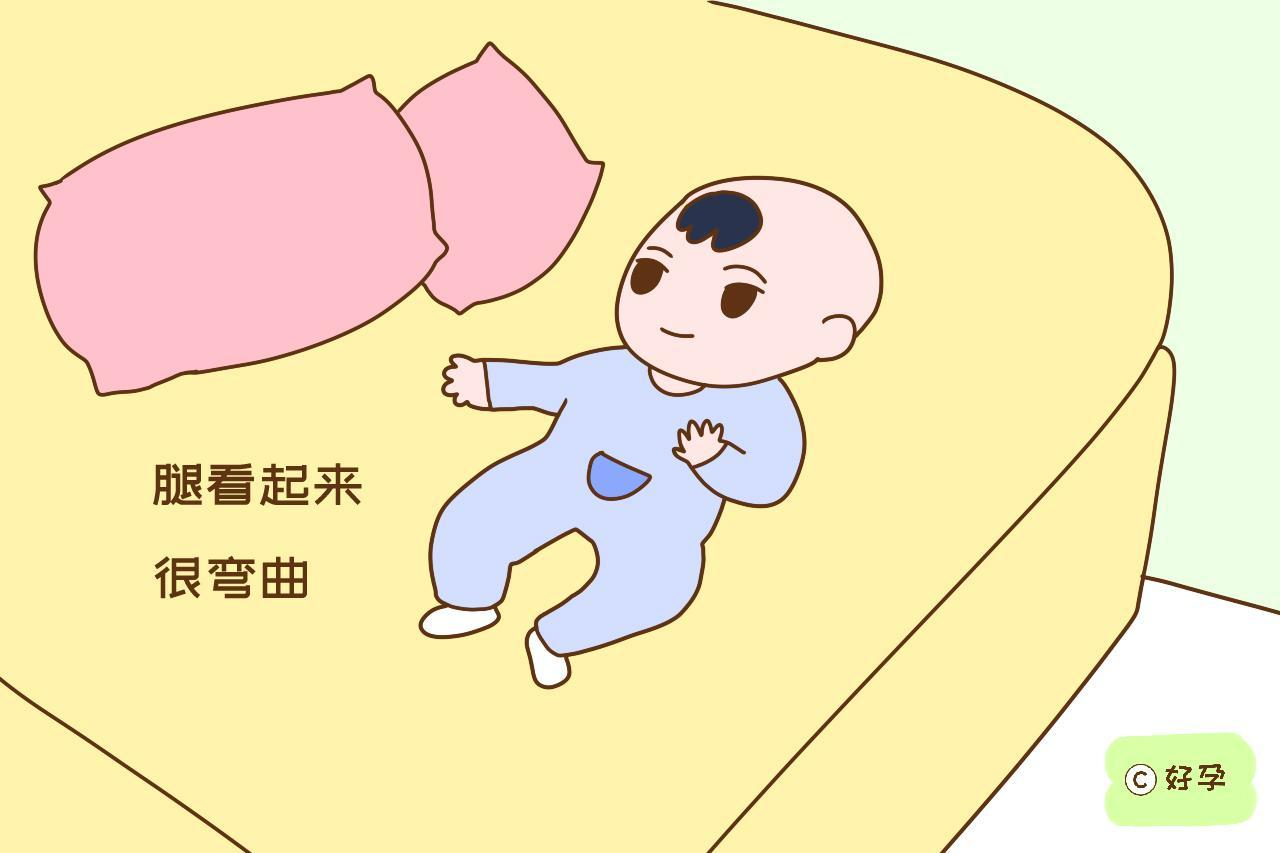 宝宝腿不直就是O型腿?若在这几个时间段,腿有点弯很正常
