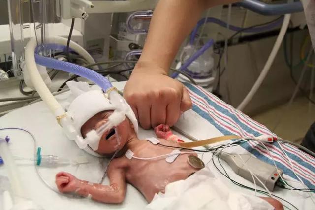 100分怙恃丨一个28周早产儿的妈妈,用爱为女儿缔造了生命的古迹