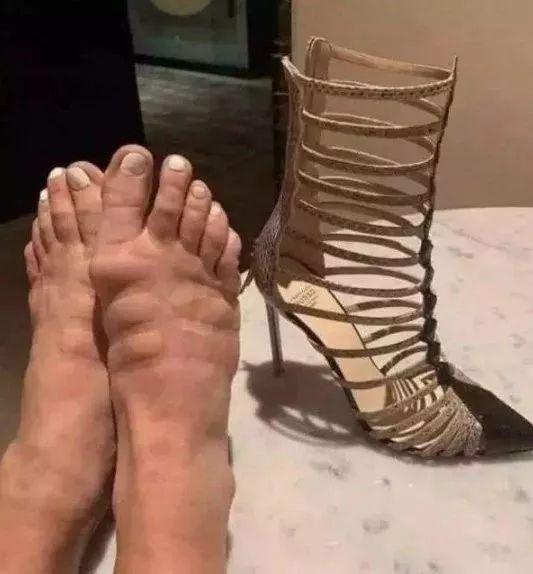 10年夜糗图:友谊提醒!女生炎天万万不要穿太紧的鞋