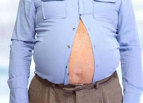 肥胖已成百病之王,是否该减肥?