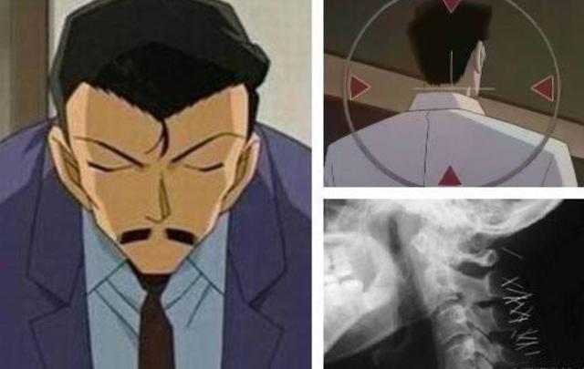 毛利小五郎是怎样看待柯南的?或许他早就知道了柯南的真实身份!