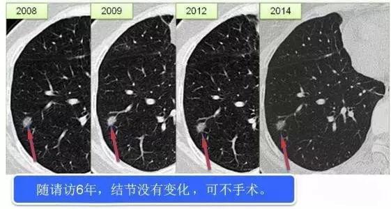 肺结节,肺癌可能性有多大?