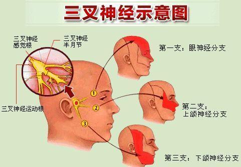 【就诊指南】如何正确理解三叉神经痛的疼痛症状?