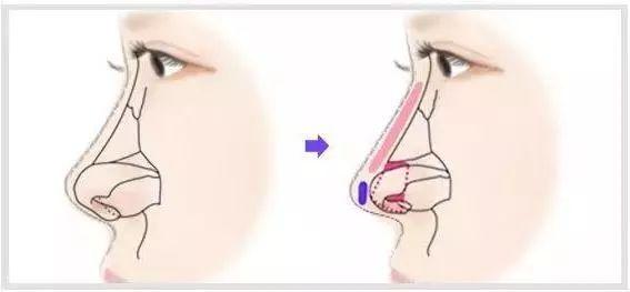 人工鼻的原理_人工鼻图片
