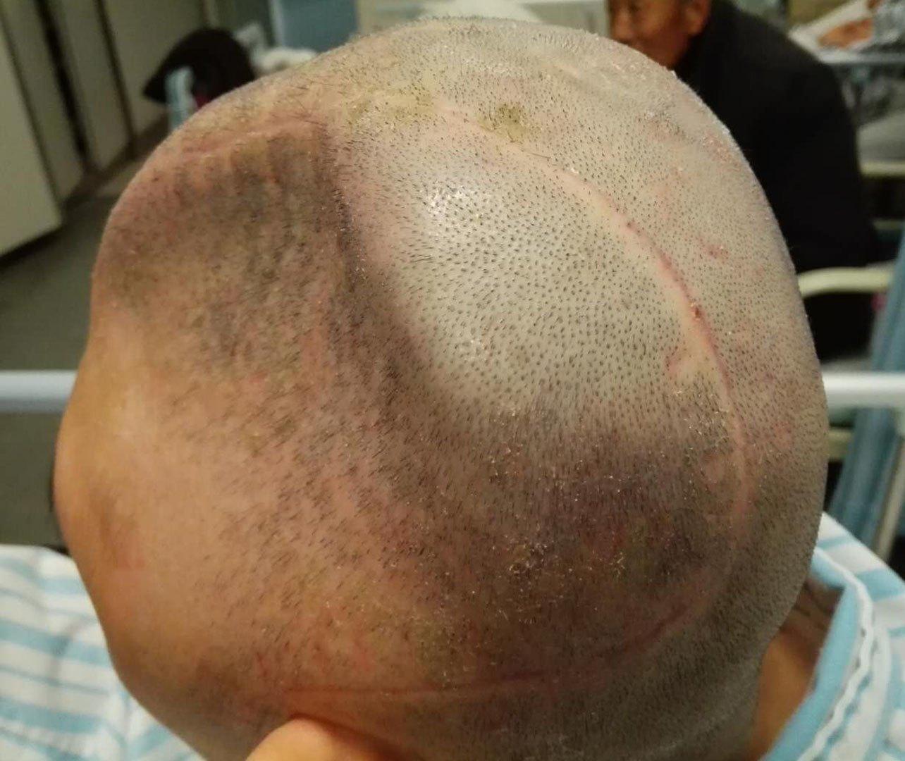 开颅手术过程图片