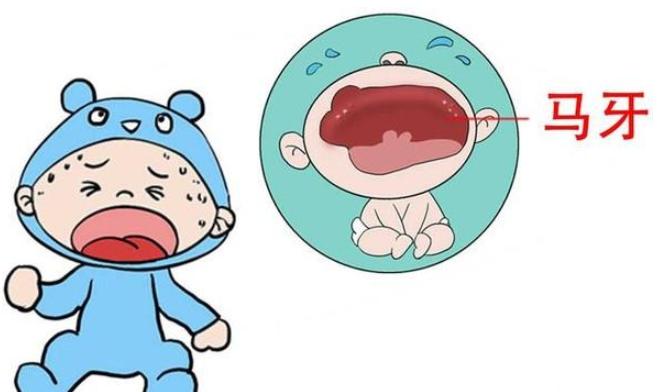 新生儿宝宝刚出生四天就长了马牙怎么办?可以用药吗?