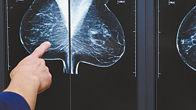 """搜狐医药   FDA建议 """"乳房致密""""女性更应警惕乳腺癌"""