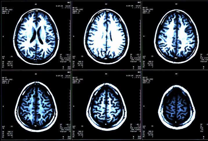 亚马逊饱受争议的AI识图工具,如今被用于简化医学图像脱敏过程(图1)