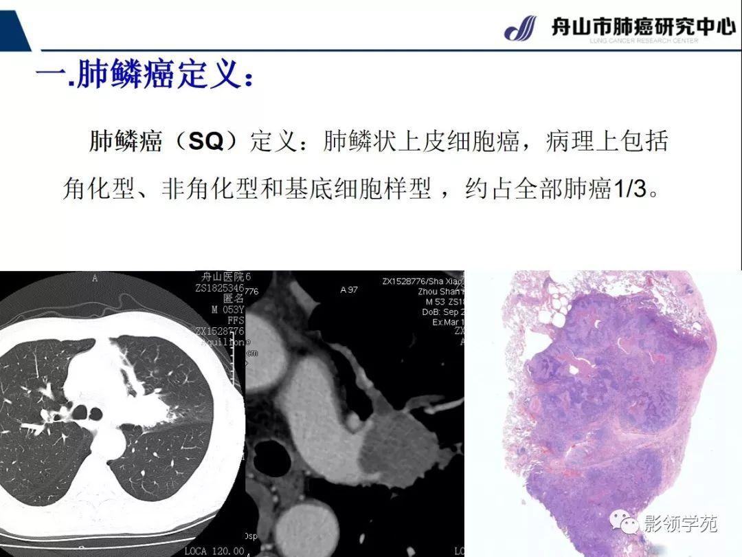 早期周围型肺鳞癌CT诊断及鉴别诊断 上