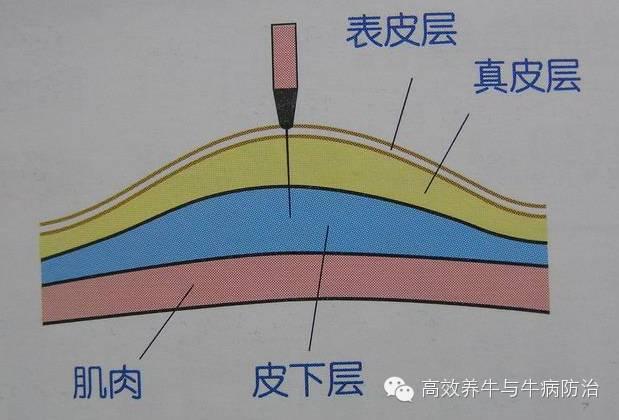 皮内注射法的实验原理_皮内注射法图片