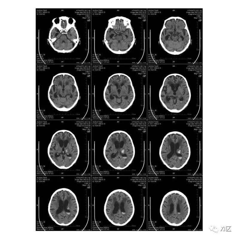 CT胶片上那些与剂量相关的参数
