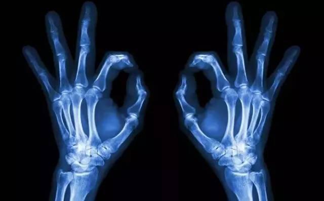 龙厚勇:X线、CT、核磁、B超有哪些区别?