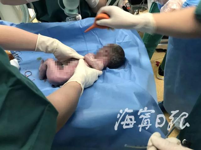 38岁孕妇浑身抽搐被迫产子!父亲放弃孩子前说了一句话…瞬间泪崩