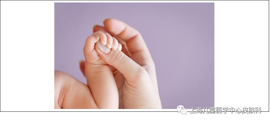 【父母必知】為什么寶寶的指甲會出現問題?——淺談兒童甲病_真菌性