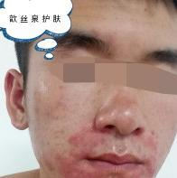 歆丝泉护肤:激素脸怎么办?激素脸的症状与治疗方法