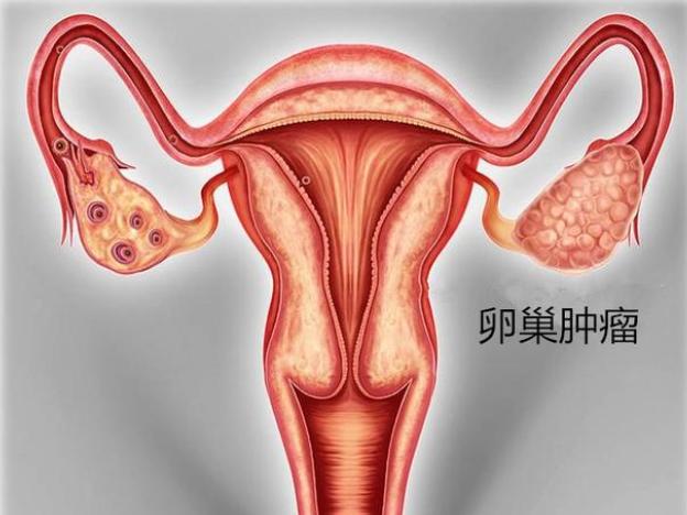 女人年过40岁,很多妇科疾病找上门,对于卵巢肿瘤如何预防呢?